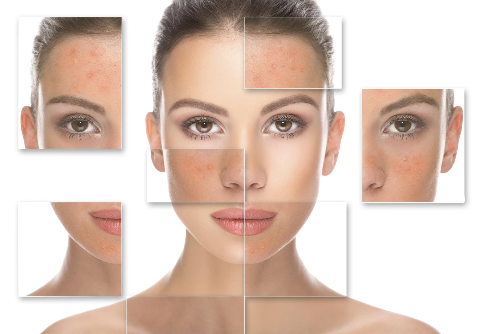 acne adult rosacea