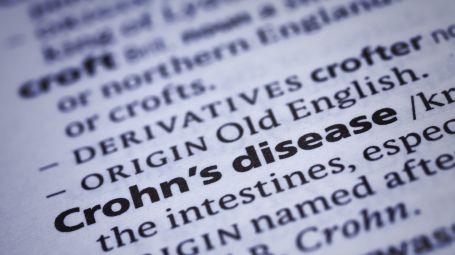 Sintomi e cure del morbo di Crohn