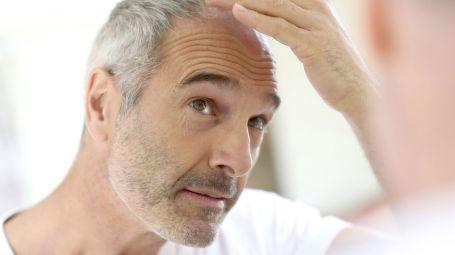 Cure per l'alopecia areata: la Prp