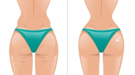 Quali sono i rimedi contro la cellulite?