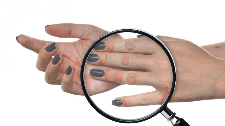 Record clinico atopic dermatite forma infantile
