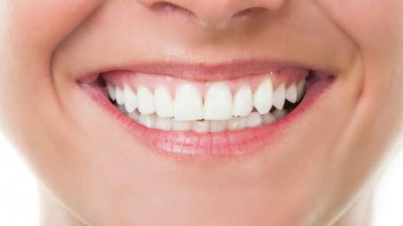 Denti, operazione sbiancamento