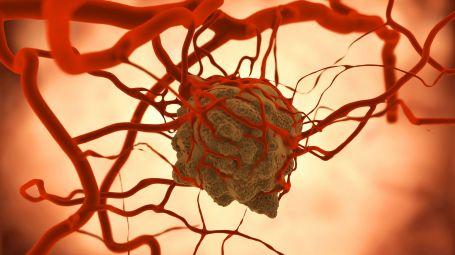 Cancro: stanziati fondi per le nuove terapie
