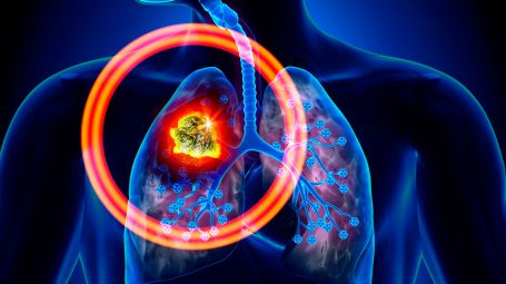 Tumore ai polmoni: c'è un nuovo farmaco