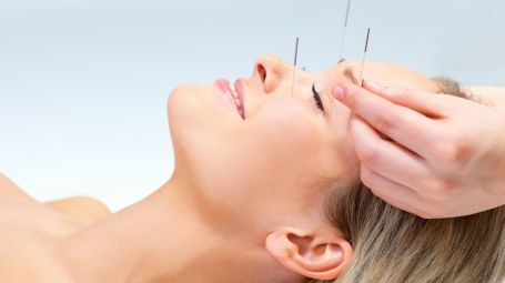 Agopuntura testa