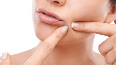 Il nuovo peeling che elimina l'acne