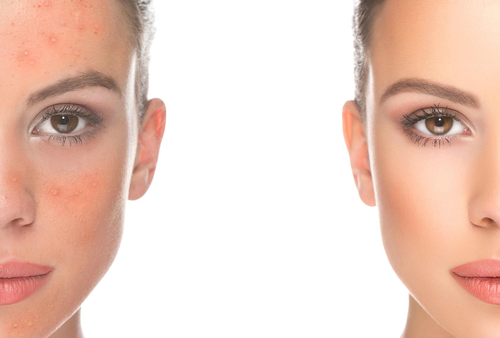 Bellezza e salute un pacco di faccia per pelle di problema