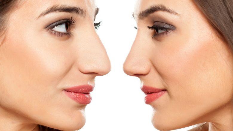 Correggere il naso con acido ialuronico e botulino