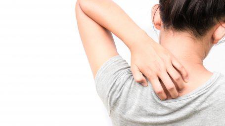 Convivere con la dermatite atopica