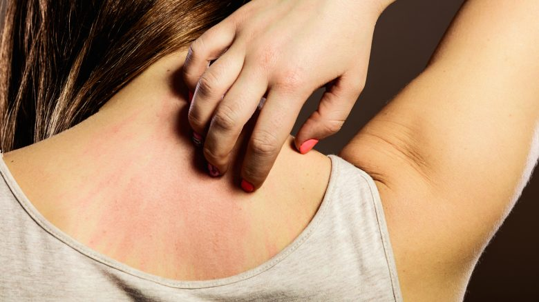Come si manifesta la dermatite da stress?