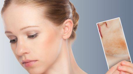 Dermatite atopica: perché va curata con dolcezza