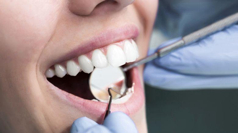 seleziona per genuino cerca l'autorizzazione online Mascherine per i denti: vantaggi e svantaggi - Starbene