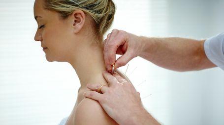 L'agopuntura guadagna terreno: tutte le novità