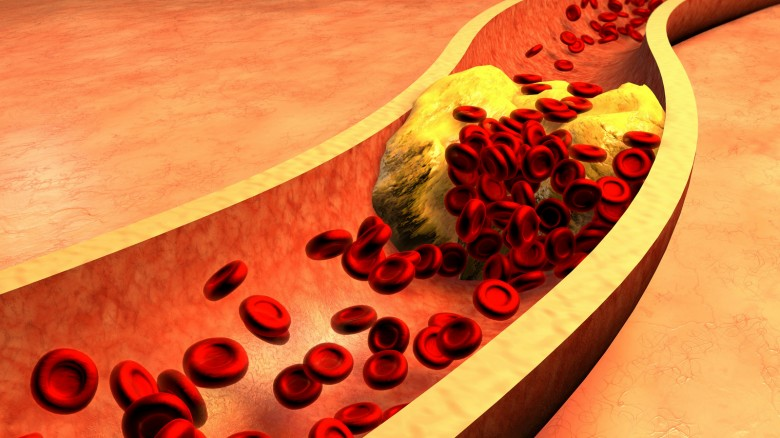 Dieta Settimanale Per Colesterolo Alto : Colesterolo alto ecco la dieta consigliata