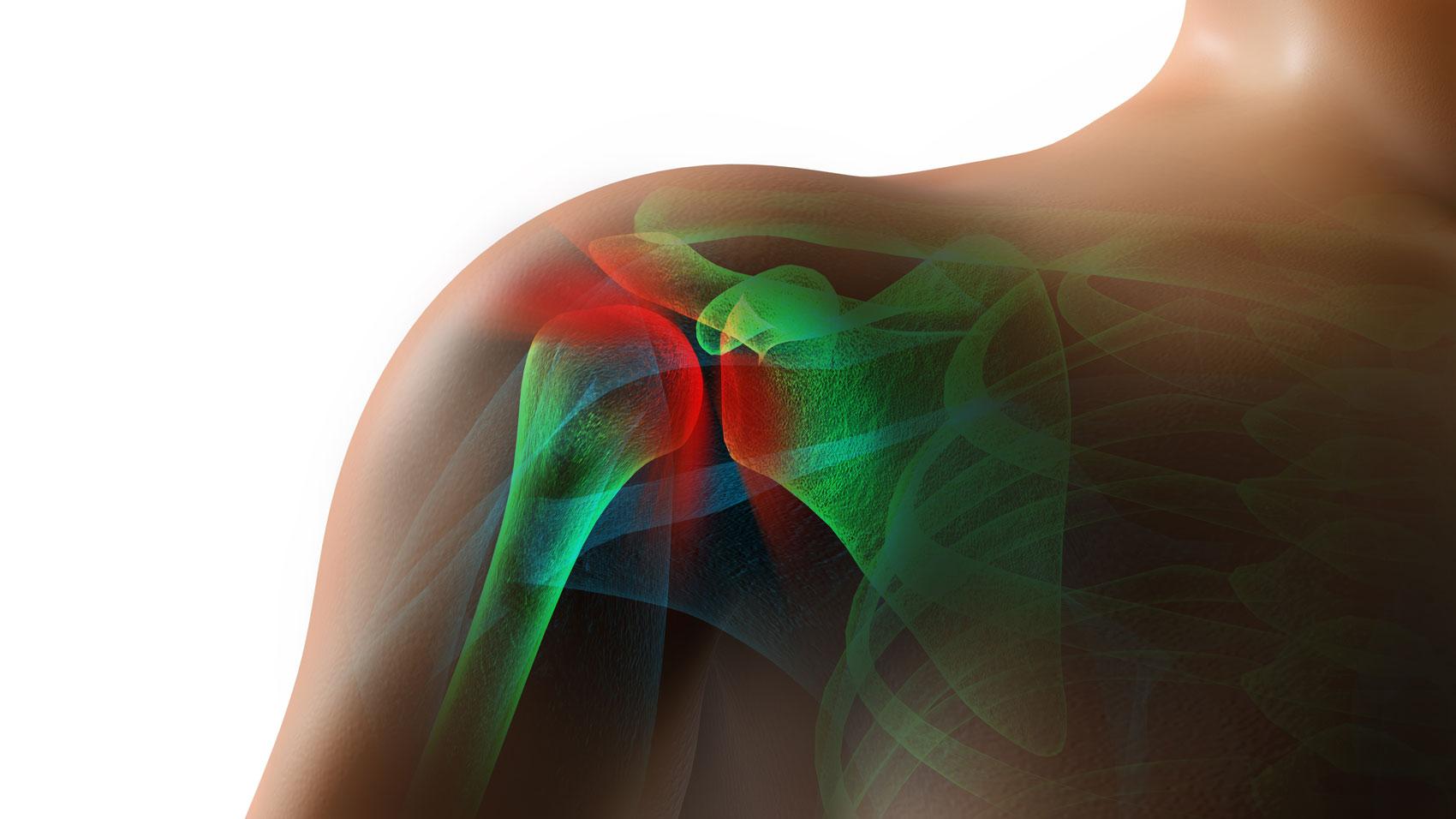 Lesione del tendine della spalla  il nuovo intervento 3fca6f7c73fe