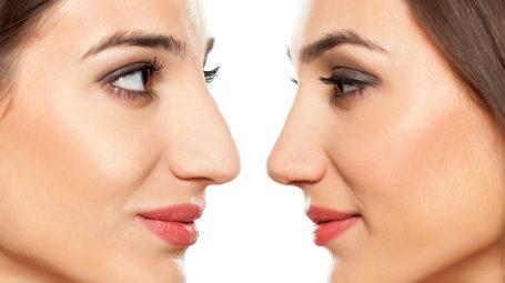 Rinoplastica: tutto quello che devi sapere sull'intervento al naso