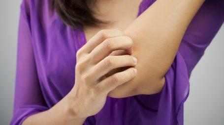 Dermatite atopica, 5 trucchi per tenerla sotto controllo