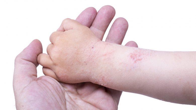 dieta per dermatite atopica negli adulti