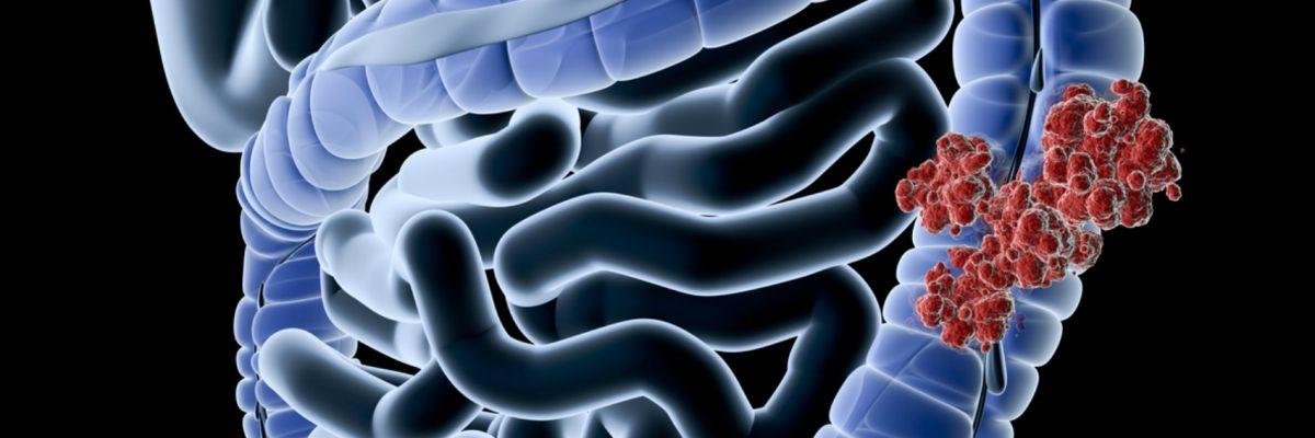 perdita di peso per il cancro al colon
