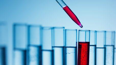 Diagnosi precoce: le tue proteine ti diranno come stai