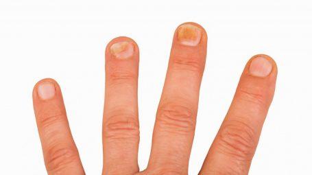 Unghie delle mani: perché compaiono le macchie scure sulle lamine