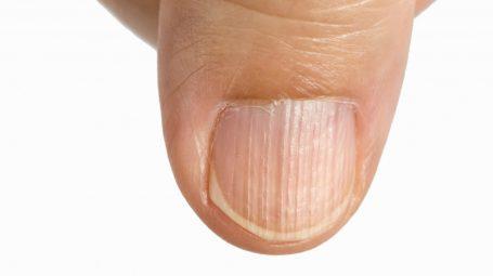 Unghie delle mani: perché compaiono striature verticali