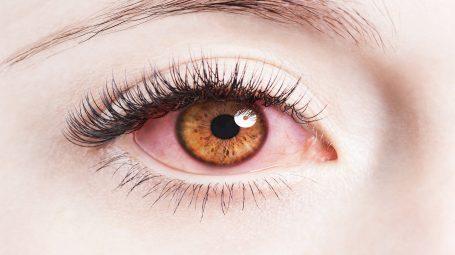 I rimedi naturali per combattere l'allergia agli occhi