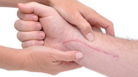 Che cosa fare per rendere invisibili cicatrici vecchie e nuove
