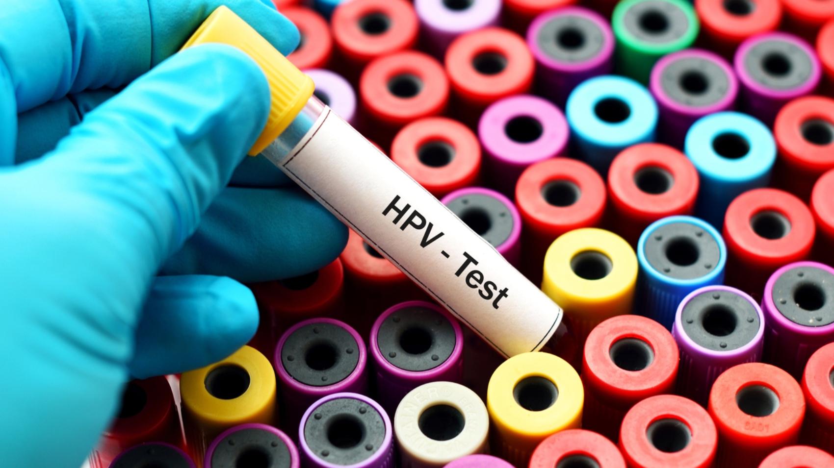Test HPV dove puoi farlo e perché è uno screening importante