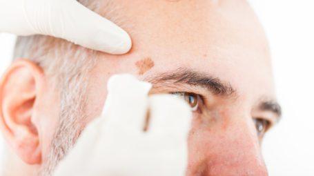 Antietà: come trattare le macchioline ruvide sulla pelle