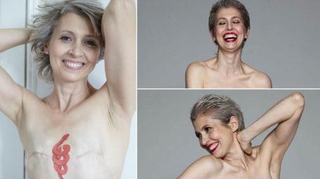 Tumori femminili: perdere il seno, non vuol dire perdere la femminilità