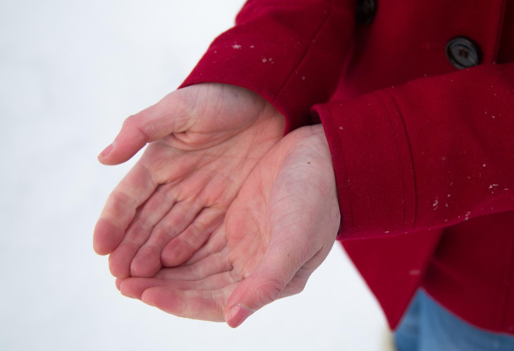 gelone, mani, freddo