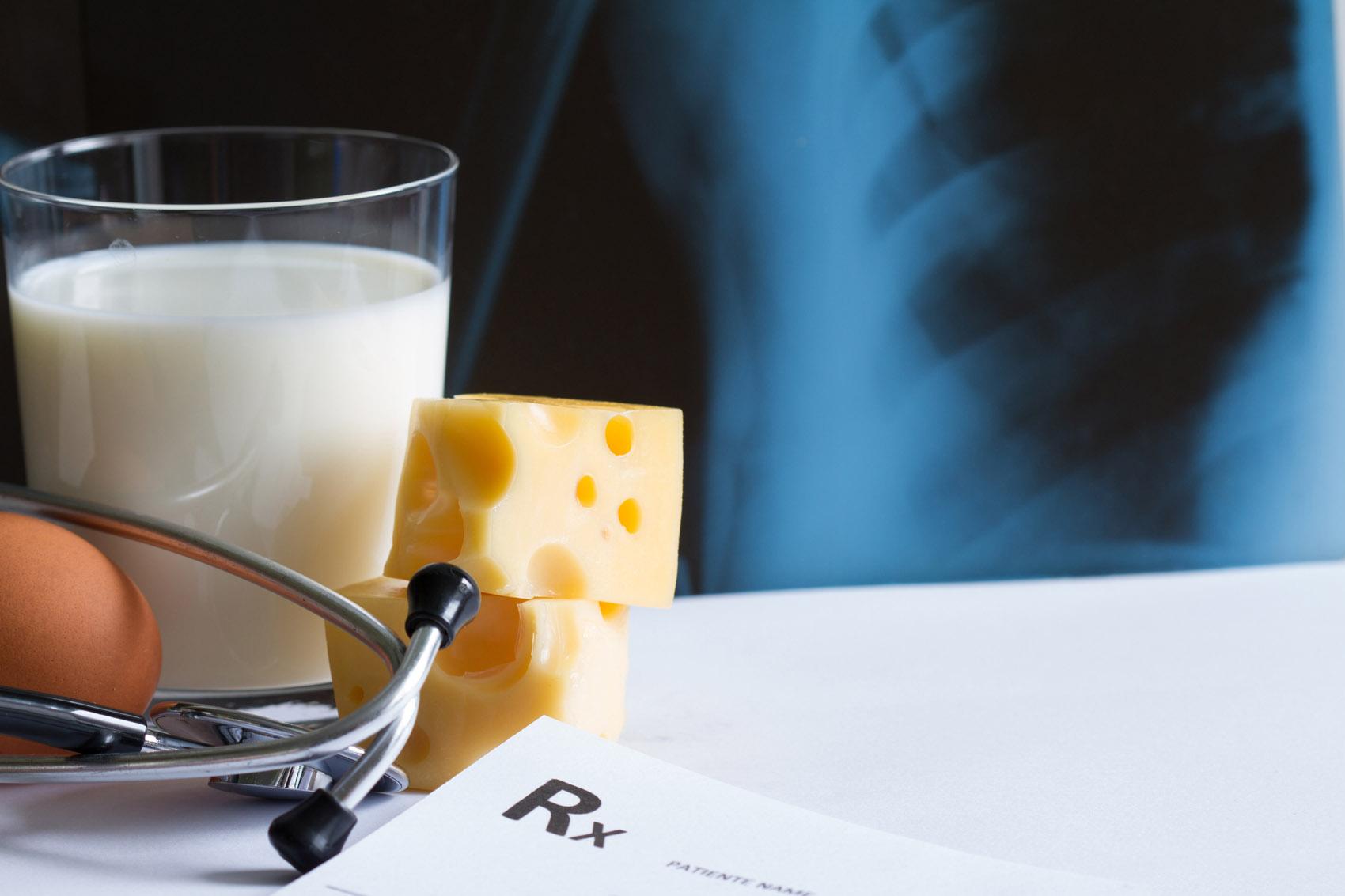 osteoporosi, calcio, ossa, latte, uova
