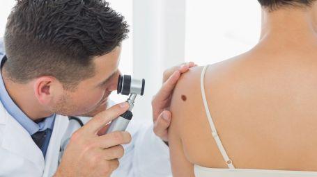 Microscopia confocale: il nuovo esame che scova i melanomi